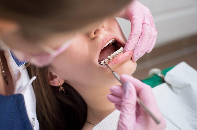 ataches ortodoncia
