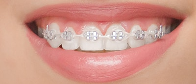ortodoncia de porcelana