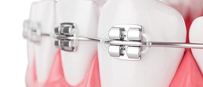 ortodoncia metalica