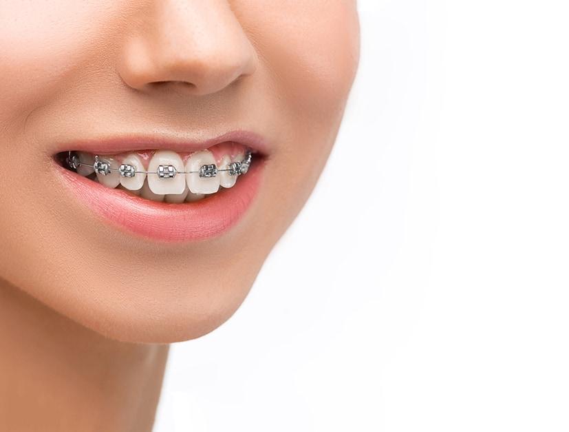 ventajas ortodoncia infantil